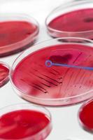 Inoculation microbiology