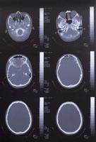 Primer plano de una tomografía computarizada con cerebro foto