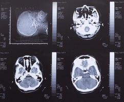 Closeup of a CT scan with brain photo