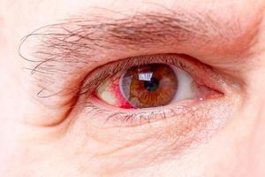 Red human eye photo