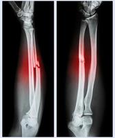 Comminuted fracture shaft of ulnar bone