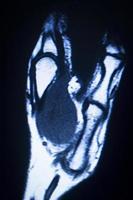 ressonância magnética ressonância magnética