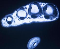 MRI magnetic resonance imaging hand fingers scan photo