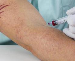 Injection in arm photo
