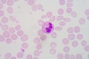 blood smear photo