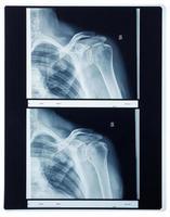 radiografía de rayos x del hombro foto