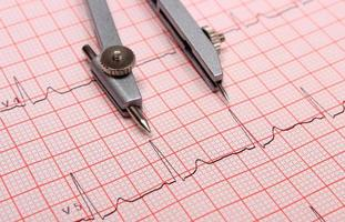 Electrocardiogram graph report and calipers