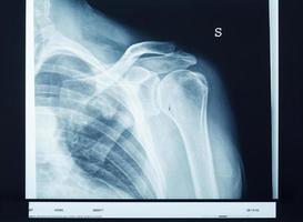 X-ray shoulder photo