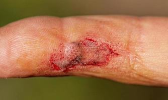 herida en el dedo masculino foto