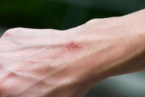 pequeña herida en la mano, casi curada foto