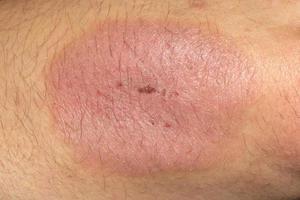 codo de psoriasis foto