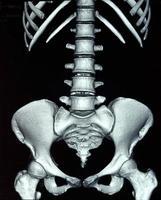 radiografía abdominal foto