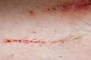 incrustation scab skin