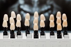 Dental teeth shades. photo