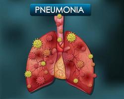 poster di polmonite con polmoni umani e cellule virali
