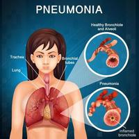 Poster detailing condition of  pneumonia with human lungs vector