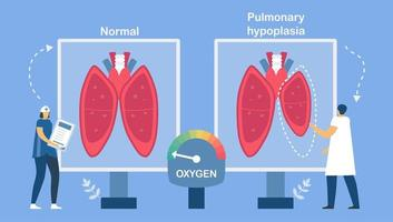 Pulmonary hypoplasia about restrictive lung disease. vector