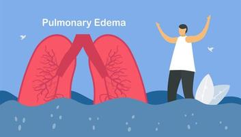 Pulmonary edema is symptom that lungs fill with fluid vector