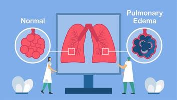 Pulmonary edema is shown good and bad alveoli.  vector