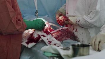 Chirurgen nähen den Bauch der Frau mit Nadel und Faden zusammen. Kaiserschnitt. Operation