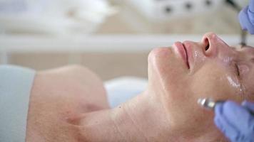 suavizar arrugas con dispositivo