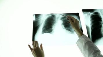 Ärztin Hände zeigen auf Lungen Röntgenstrahl Leuchttisch video
