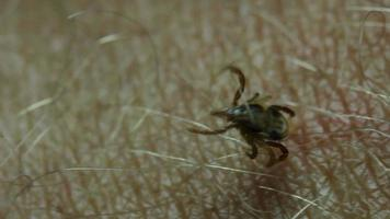 garrapata de la parálisis, parásito de la garrapata del perro - parasitiformes video