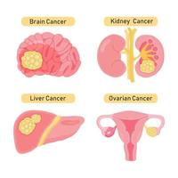 Types of organ cancer design