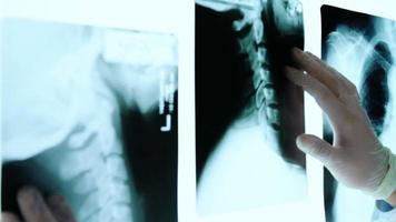 mãos de médico tocando raio-x examina quarto escuro