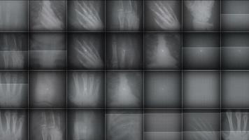 x ray foto achtergrond video