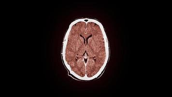 risonanza magnetica del cervello umano video