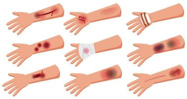 Group of lesion on arm skin injury accident  cartoon style vector