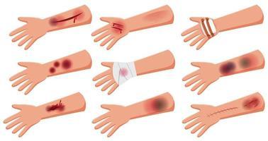 grupo de lesión en el estilo de dibujos animados de accidente de lesión en la piel del brazo vector