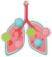 pulmones atacados por coronavirus estilo de dibujos animados vector