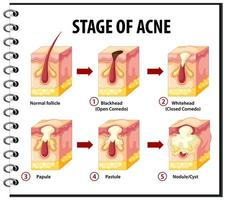 Stages of skin acne anatomy