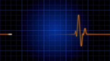 um monitor cardíaco de eletrocardiograma pulsa em uma grade azul