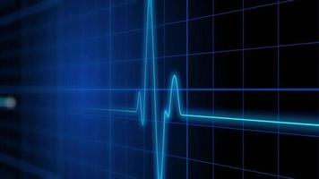 Un monitor cardíaco de electrocardiograma pulsa sobre una cuadrícula azul video