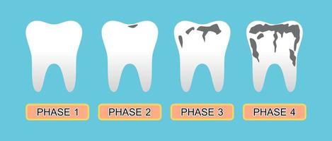 Tooth caries and Stage of the disease. vector