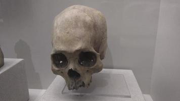 espécimen médico de cráneo humano