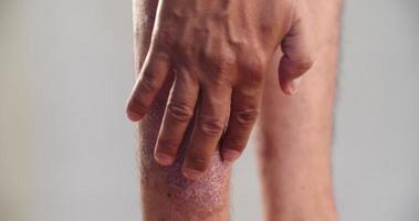 psoriasis en el tobillo sobre fondo gris. 4k dci