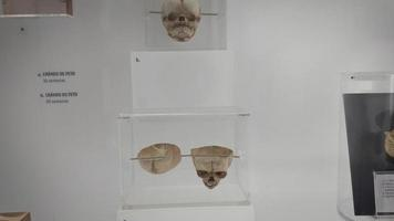 medizinische Proben von Schädeln und Knochen des Fötus