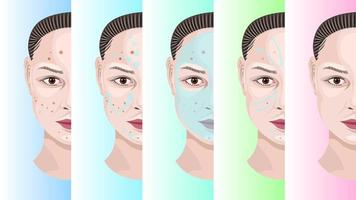 Woman Face Step by Step Acne Treatment