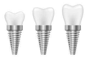 Ilustración de diseño de vector de implante de diente aislado sobre fondo blanco