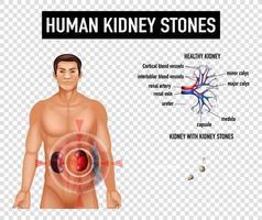 diagrama que muestra cálculos renales humanos vector