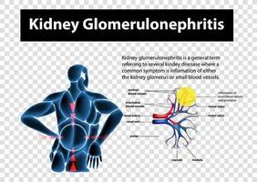 Diagrama que muestra la glomerulonefritis renal sobre fondo transparente vector