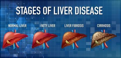 Stages of liver disease leading to Cirrhosis vector