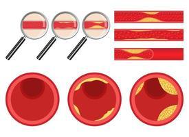 Conjunto de ilustración de diseño de vector de arteriosclerosis aislado sobre fondo blanco