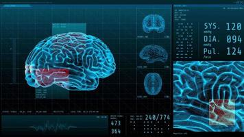 3D Brain and vital signs with statistical data neurology display