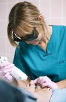 médico haciendo un tratamiento con láser en los pies de la mujer