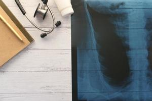 X ray photography, digital tablet on white background photo